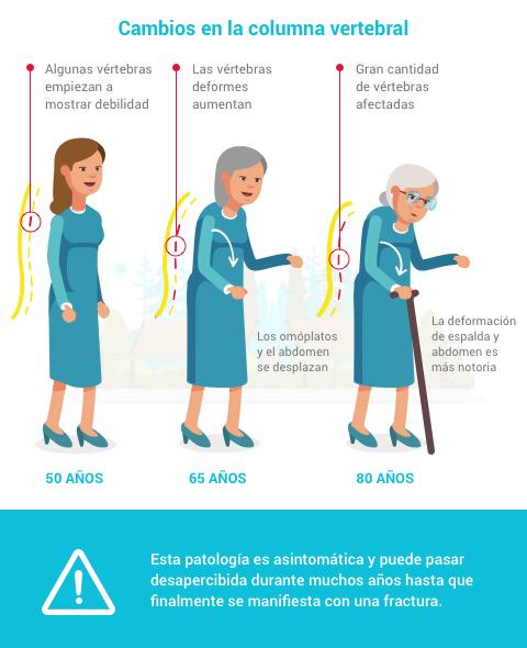 osteoporosis-un-silencio-cronico
