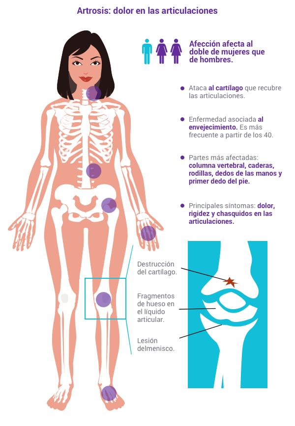 artrosis-vitamina-d