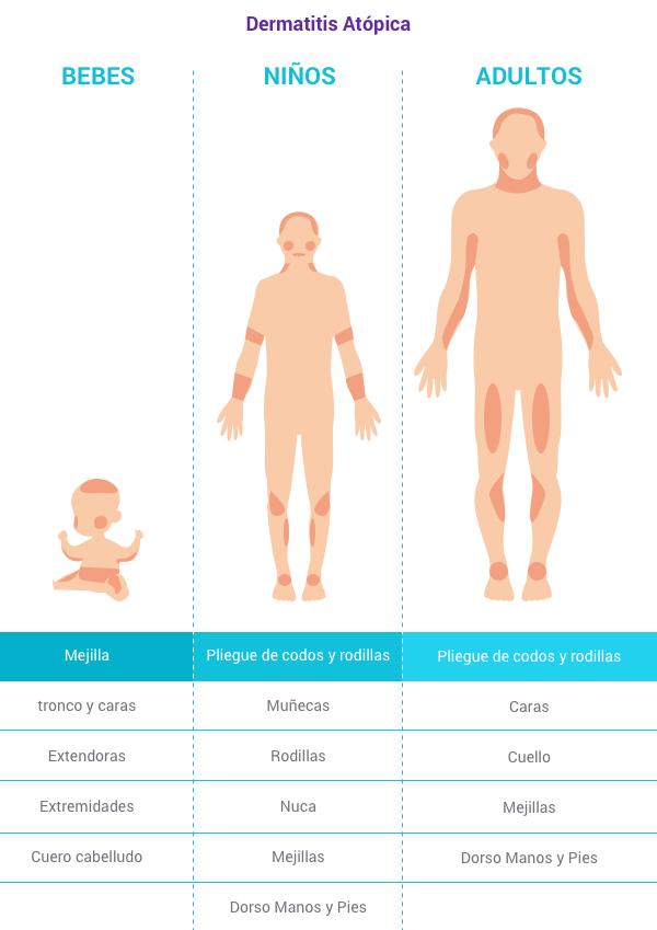 como-afecta-dermatitis-atopica